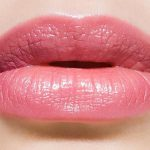 Cosmetic Lip Enhancement at Beauty on Latrobe Paddington